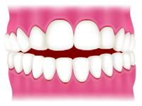 前歯がうまく閉じられない<開咬(かいこう)/オープンバイト>