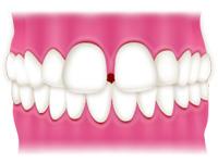 すきっ歯<正中離開(せいちゅうりかい)/空隙歯列>