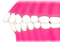 上顎前突と前歯の外傷