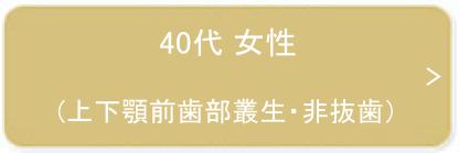 40代 女性(上下顎前歯部叢生・非抜歯)